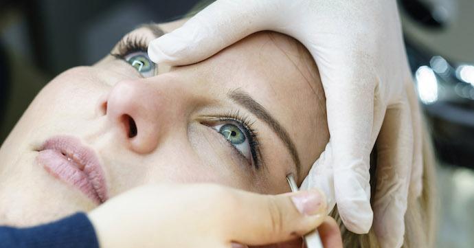 deux implant au sourcil
