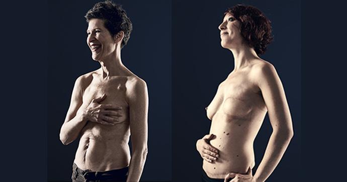 Des tatouages éphémères pour lutter contre le cancer du sein