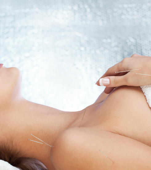 Le verdict beauté: on a testé le lifting par acupuncture