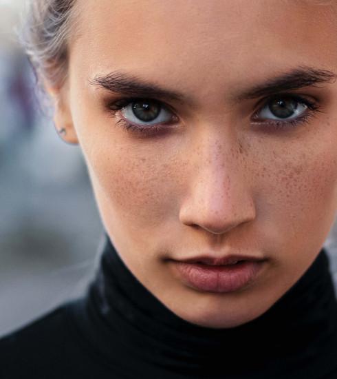 Quel impact votre alimentation peut-elle avoir sur votre acné?