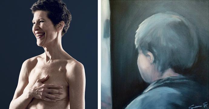 Kunst tegen kanker