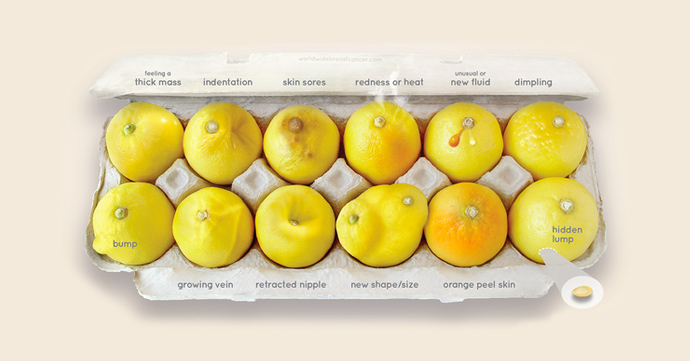 Know your lemons: de zichtbare symptomen van borstkanker