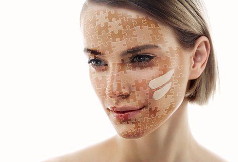Je huid in kaart gebracht: voor elke zone een oplossing