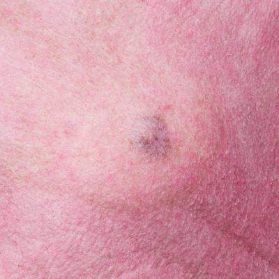 Taboob: het instagramaccount dat het taboe rond borsten wil doorprikken 150*150