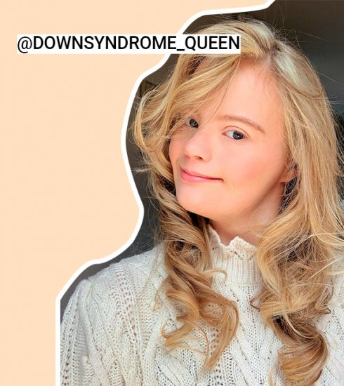 Woman to watch: Downsyndrome Queen