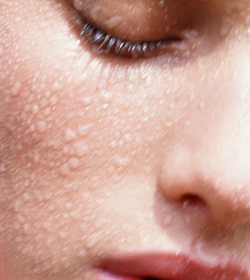 Feit of fabel? De waarheid achter 5 mythes over huidkanker